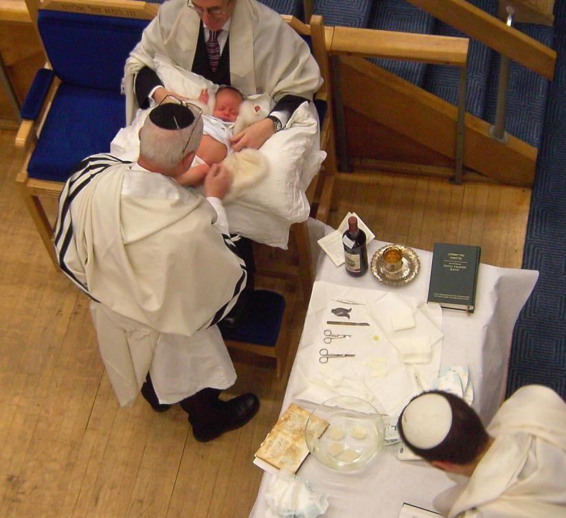 Why Do JewsCircumcise?